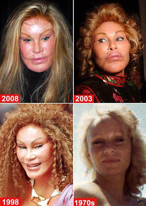 Jocelyn Wildenstein Plastic Surgery Disaster