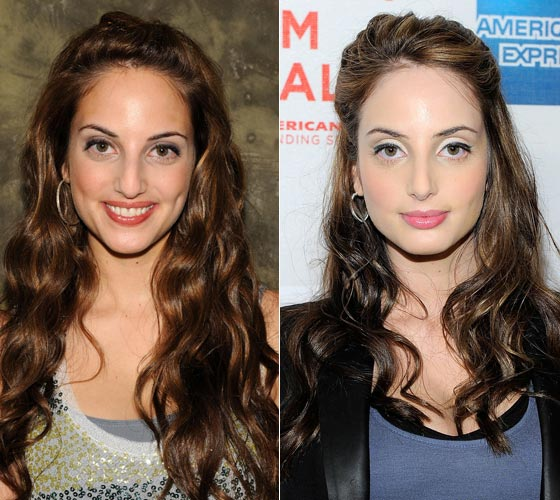 Alexa Ray Joel Nose Job