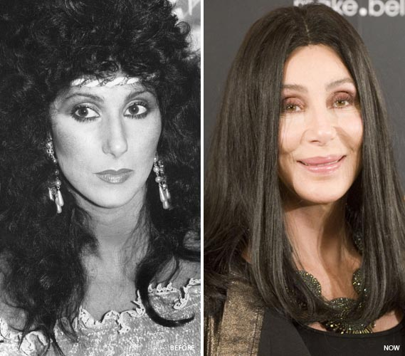 Cher Plastic Surgery Before & After