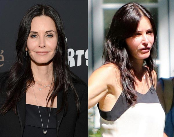 Courteney Cox Plastic Surgery
