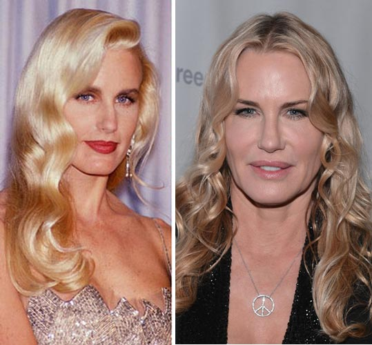 Daryl Hannah Plastic Surgery Before & After