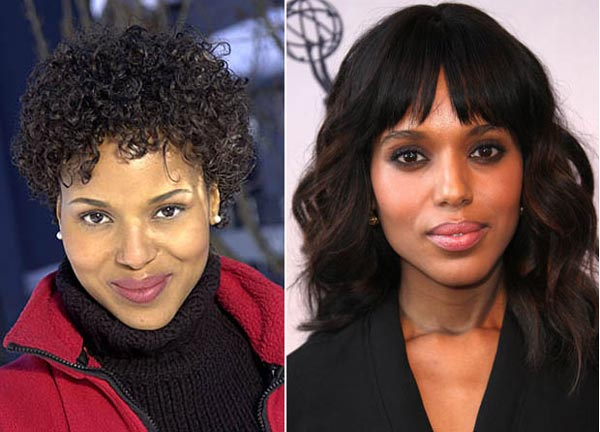 Kerry Washington Plastic Surgery Before & After