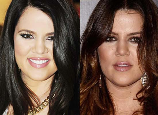Khloe Kardashian Plastic Surgery Before & After