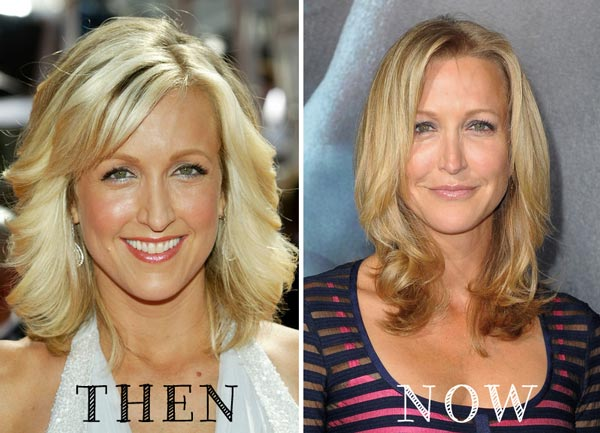 Lara Spencer Plastic Surgery Before & After