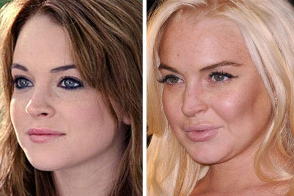Lindsay Lohan Plastic Surgery Before & After
