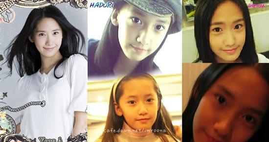 SNSD Plastic Surgery - Yoona