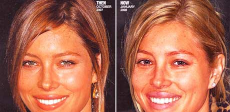 Jessica Biel Lip Injection