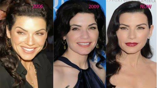 Julianna Margulies Plastic Surgery Before & After