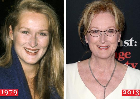 Meryl Streep Plastic Surgery