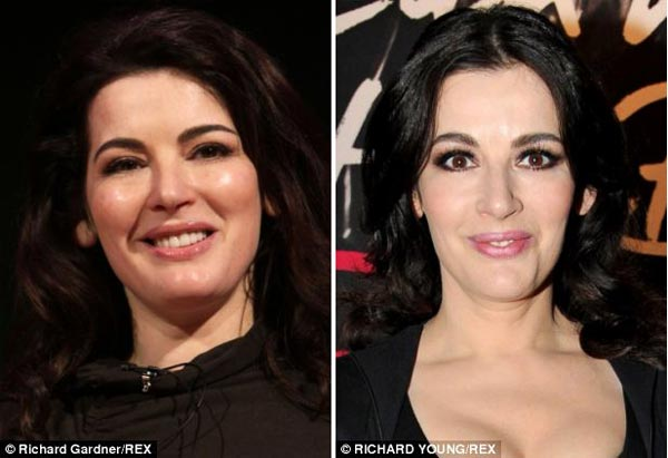 Nigella Lawson Plastic Surgery Before & After