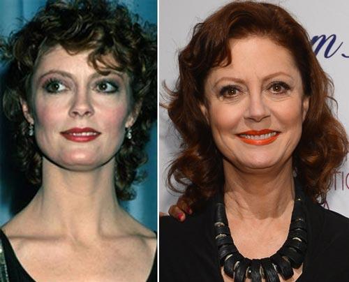 Susan Sarandon Plastic Surgery Before & After