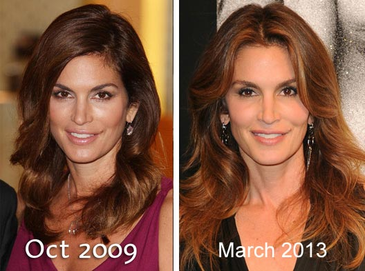 Cindy Crawford Plastic Surgery Before After