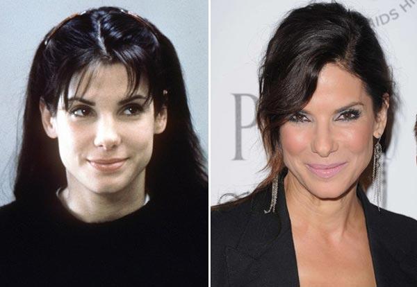 Sandra Bullock Plastic Surgery Before & After