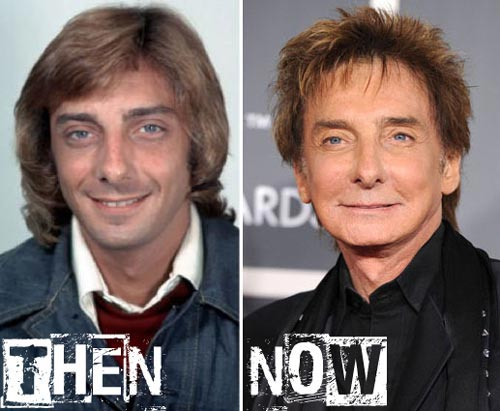 Barry Manilow Plastic Surgery Before After