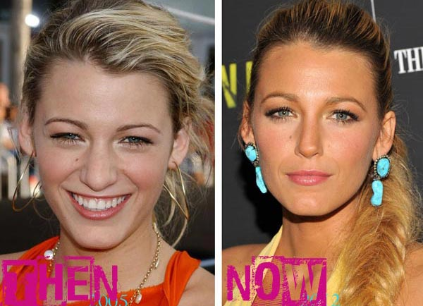 Blake Lively Plastic Surgery Before & After