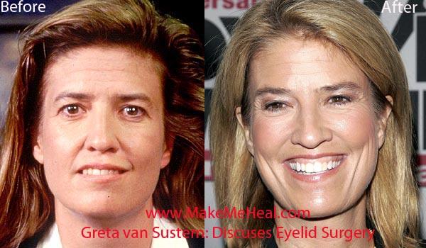 Greta Van Susteren Plastic Surgery Before & After