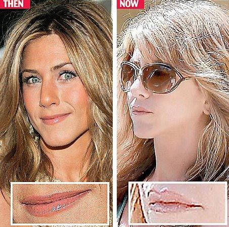Jennifer Aniston Lip Injection