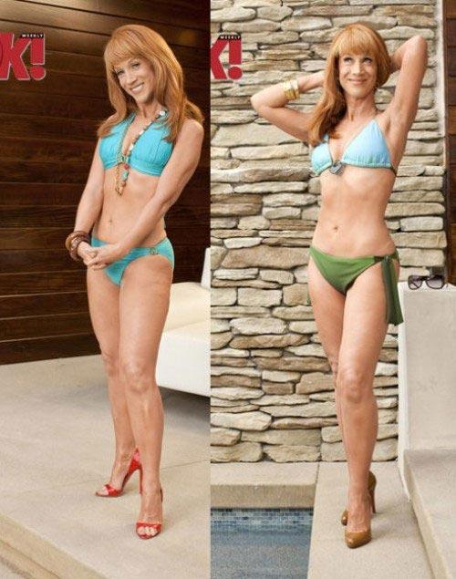 Kathy Griffin Liposuction