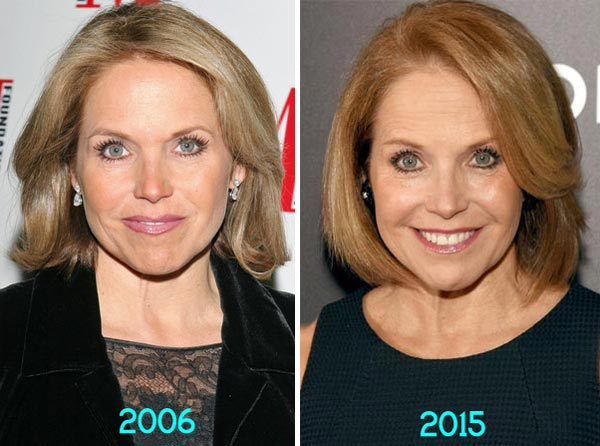 Katie Couric Plastic Surgery Before& After