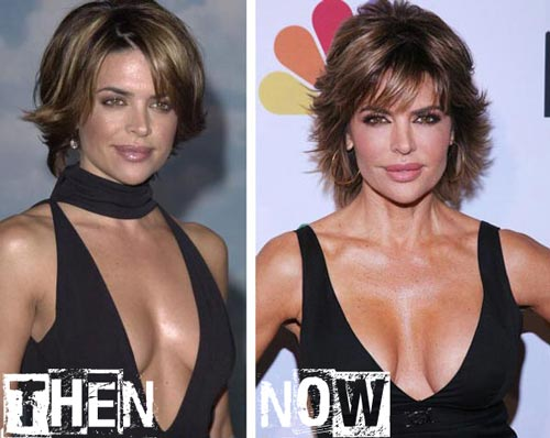 Lisa Rinna Breast Implants