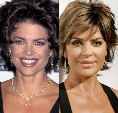 Lisa Rinna Plastic Surgery Disaster