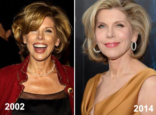 Christine Baranski Plastic Surgery Before & After