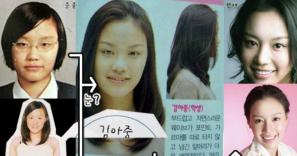 Kim Ah Joong Plastic Surgery Before & After