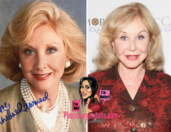 Michael Learned Plastic Surgery Before & After