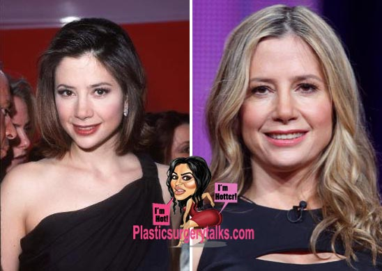 Mira Sorvino Plastic Surgery