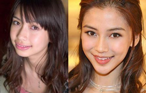 Angelababy Chin Implants