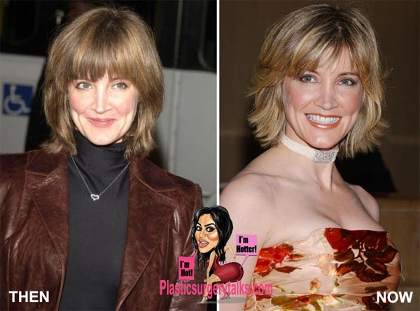 Crystal Bernard Plastic Surgery Before & After