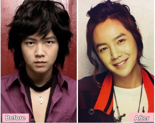 Jang Geun Suk Plastic Surgery Before After