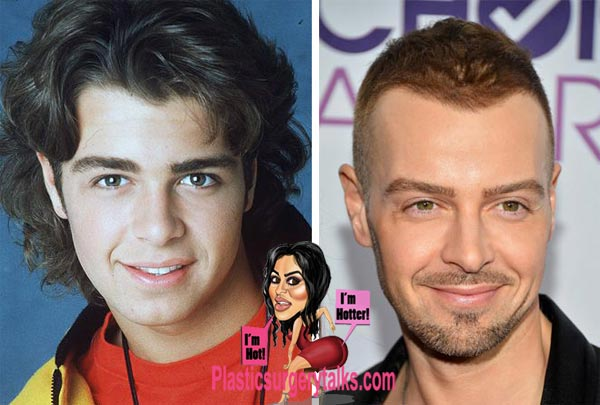 Joey Lawrence Plastic Surgery Before & After