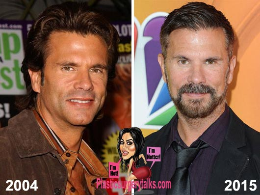 Lorenzo Lamas Plastic Surgery Before & After