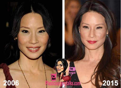 Lucy Liu Plastic Surgery Before & After