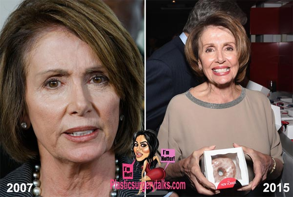 Nancy Pelosi Plastic Surgery