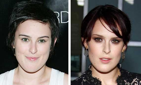 Rumer Willis Plastic Surgery Before & After