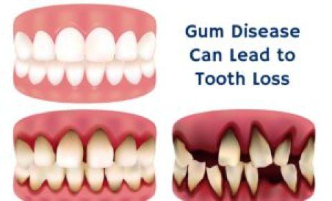 dental-cavity-causes-tooth-loss