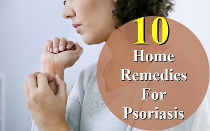 Did You Know These 10 Home Remedies for Psoriasis