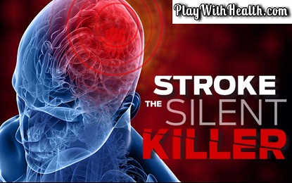 Everything about Stroke – What Happens Before, During and After a Stroke