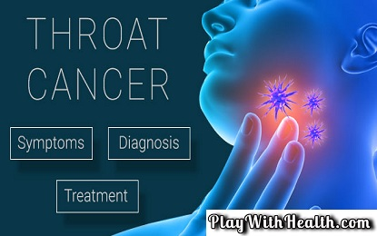 12 Symptoms And Signs Of Throat Cancer