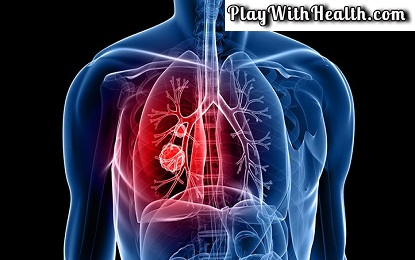 Adenocarcinoma Disease is a Beginning of Lungs Cancer Know Symptoms and Causes