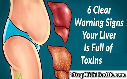 Did You Know These 6 Warning Signals That Show Your Liver Is Full of Toxins