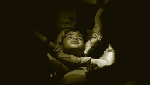 reanimación niño sirio