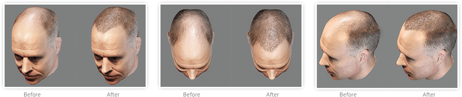artas-robotic-hair-transaplant-consultation