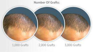 number-of-grafts