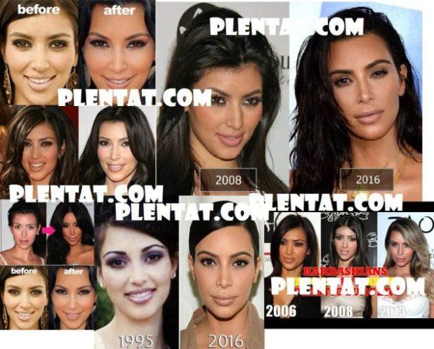 Kim Kardashian Before Plastic Surgery