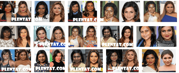 Mindy Kaling Plastic Surgery Before And After