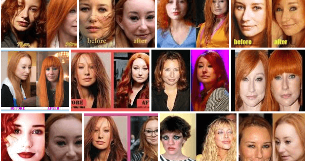Tori Amos Plastic Surgery Before And After (American Singer-Songwriter)