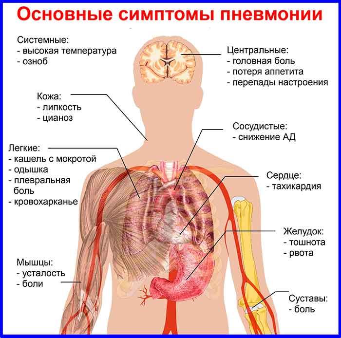 Пневмония, қалыпқа байланысты